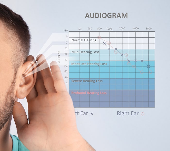 audiogram hearing test results